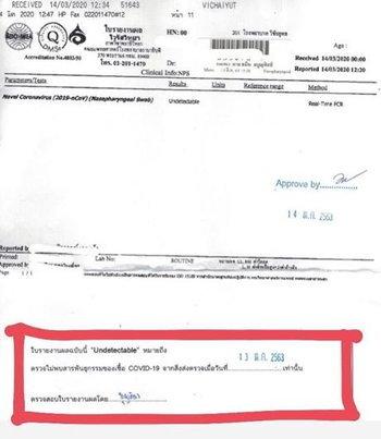 ผลตรวจของ บอม ธนิน ไม่พบเชื้อโควิด-19