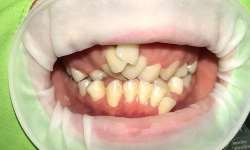 อุทาหรณ์จัดฟันแฟชั่น หมอแชร์ภาพฟันเกสยอง ฝันร้ายแค่ไม่กี่เดือน