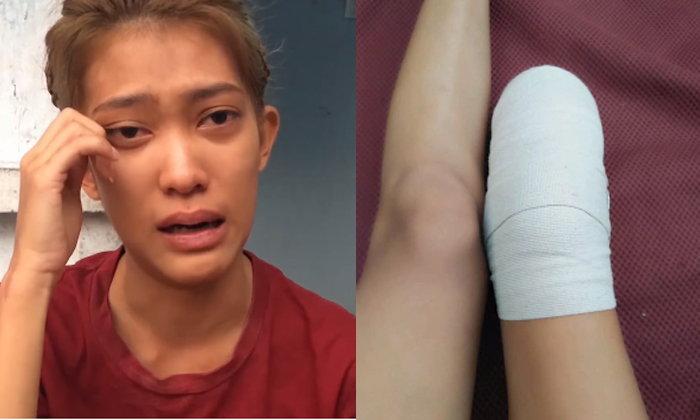 """สาวถูกรถชนจนต้อง """"ตัดขา"""" คู่กรณีไม่สำนึกด่าสำออย-ท้าให้ฟ้อง"""