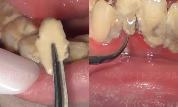 """หมอฟันญี่ปุ่นอึ้ง เจอ """"โคตรหินปูน"""" ในช่องปากคนไข้สาววัย 25 บางชิ้นใหญ่กว่าฟัน"""