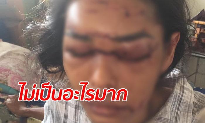ญาติโวยโรงพยาบาลสะเพร่า สาวรถชนโคม่าแต่ไม่ให้แอดมิท หวิดหน้าเบี้ยว-ตาบอด