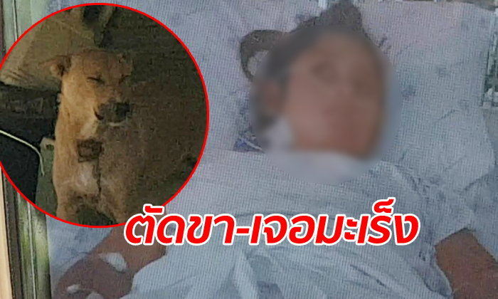 สาวถูกหมากัดแผลเดียว ต้องตัดขาทิ้ง 2 ข้าง ช็อกซ้ำนึกว่าตั้งครรภ์-ที่แท้ป่วยมะเร็ง