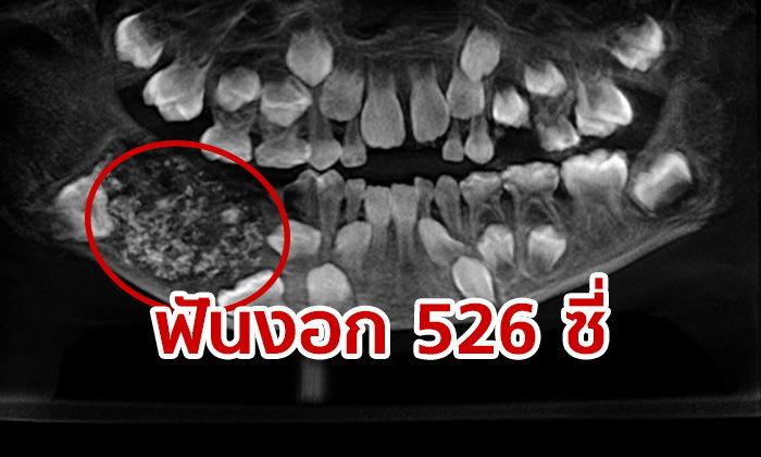 หมอตะลึง เจอฟัน 526 ซี่ในปากเด็กอินเดีย 7 ขวบ