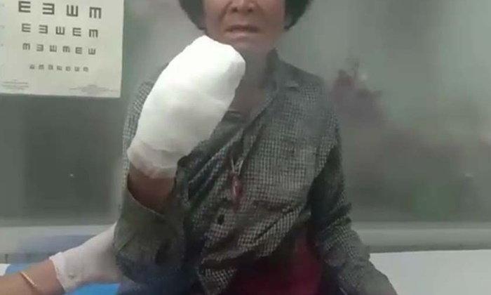 อุทาหรณ์ ยายเมืองชลปาระเบิดปิงปองไล่นก พลาดบึ้มใส่มือนิ้วขาดเกือบหมด