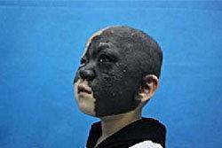 เด็กหญิง4ขวบจีน เผชิญโรคหน้าดำ ลุ้นผ่าตัดหาย