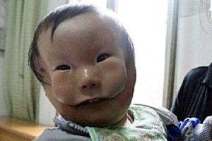 แปลก! เด็กจีนป่วย มีใบหน้าซ้อนกันสองชั้น