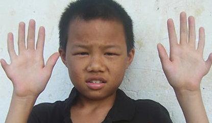 ตะลึง! เด็กจีนพิเศษ มีนิ้วเท้าโผล่รวม 24 นิ้ว