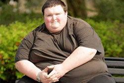 หนุ่มผู้ดีอ้วนจัด! หมอตรวจหาหัวใจไม่เจอ