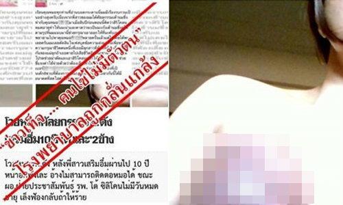 รพ.ยันฮี โต้ข่าวศัลยกรรมนมเน่า ชี้คนไข้ไม่มีจริง-ถูกกลั่นแกล้ง