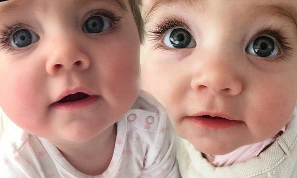 โลกออนไลน์แชร์ความน่ารัก เด็กน้อยตาสวยที่สุดในโลก