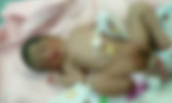 สาว 18 แอบคลอดลูกทิ้งกองขยะ ความแตกเพราะตกเลือด