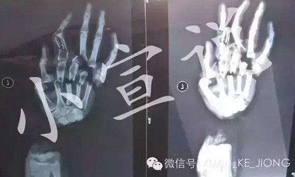 ผัวจีนโหดฟันมือเมียขาด หลังกล่าวหาแอบมีชู้