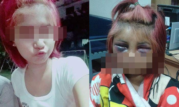 สาว 16 ถูกเพื่อนรุมซ้อมปางตาย หน้าตาบวมปูดไม่เหลือเค้าเดิม