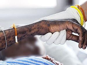 นราฯเผยมีผู้ป่วยเอดส์ 2,231ราย