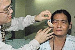 หมอราชวิถีผ่าตัดตาช่วย ดอกรัก มองเห็น