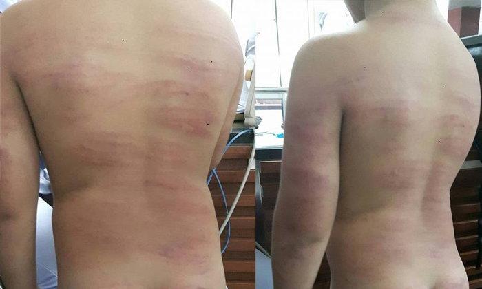 ญาติแจ้งความจับครูสาวสุดโหด ตีนักเรียน 99 ที ระบมทั้งตัว