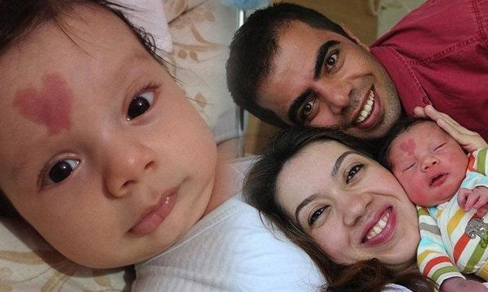 ดังทั่วโซเชียล เด็กชายตุรกีมีปานแดงรูปหัวใจกลางหน้าผาก