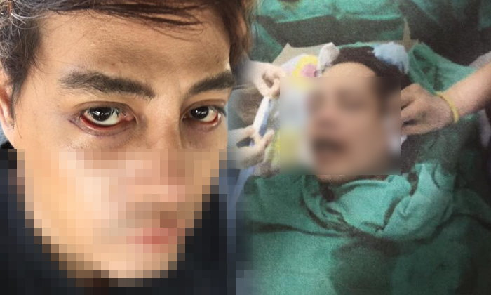 หนุ่มร้องคลินิกศัลยกรรมหน้าพัง ขอบตาปลิ้น เหยื่อโผล่อีกเพียบ