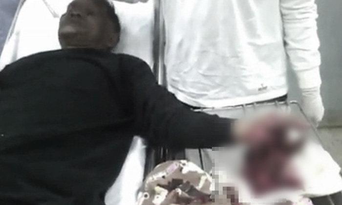 หลานขี้เมาเล่นพิเรนทร์  แอบจุดระเบิดปิงปองในมือลุง ทำข้อมือเละหวิดขาด