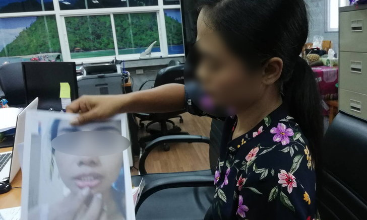 """สาวร้องอ้างถูก """"ผอ.การท่า"""" ยกพวกรุมตบกลางสนามบินกระบี่ 2 ครั้ง แต่คดีไม่คืบ"""