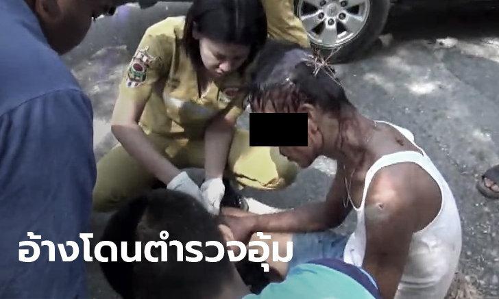 หนุ่มใหญ่สภาพปางตาย อ้างถูกตำรวจอุ้ม-มีดฟันค้อนทุบ ก่อนนำมาทิ้งป่าชลบุรี