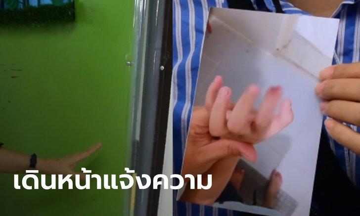 ผู้ปกครองเด็กอนุบาลปลายนิ้วขาด เดินหน้าดำเนินคดีกับโรงเรียน ชี้ให้เวลามาเป็นเดือนแล้ว