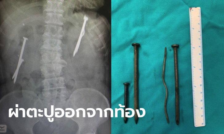 ตาวัย 75 เครียดโควิด กลืนตะปู-ลวดเหล็ก หวังฆ่าตัวตาย สุดท้ายปวดท้องหนักต้องผ่าตัด