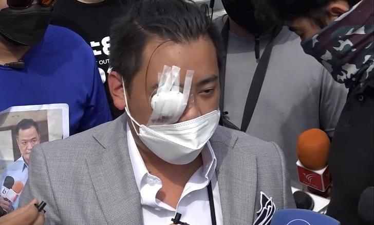 ไฮโซลูกนัท โผล่ร่วม #ม็อบ22สิงหา ครั้งแรกหลังตาขวาบอด ลั่นสู้ต่อแน่นอน