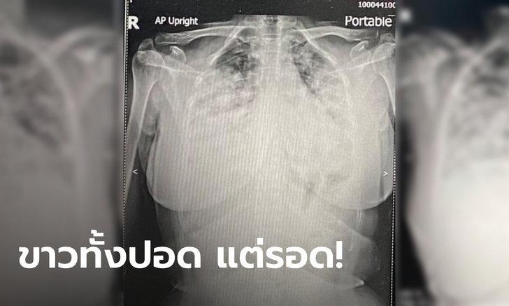 หมอเล่าเคสปาฏิหาริย์ ผู้ป่วยโควิด ICU ปอดขาวโพลน ทุกคนคิดว่าไม่รอด แต่รอด!