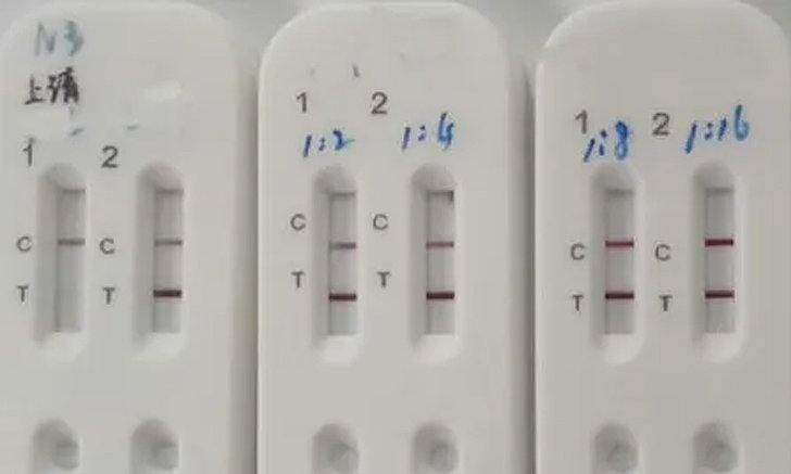"""ไวรัสโคโรนา: 1 หยด 15 นาที รู้เรื่อง! ติดไม่ติด """"โควิด-19"""" ด้วยชุดตรวจใหม่ล่าสุดจากจีน"""