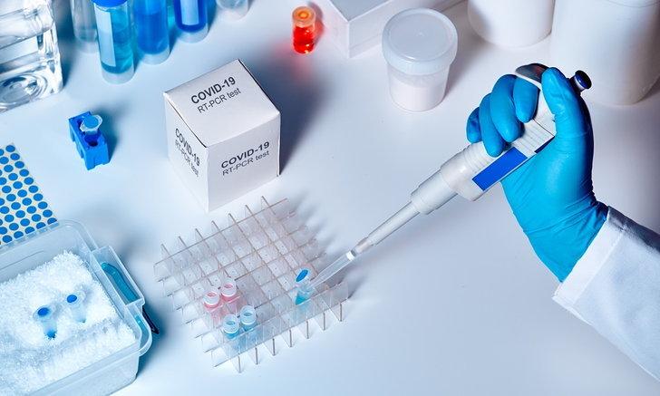 """""""Bosch"""" พัฒนาอุปกรณ์ตรวจหา """"ไวรัสโคโรนา"""" รู้ผลภายใน 3 ชม."""