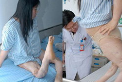พบสาวจีนขาบิด หมอช่วยให้ตรงเหมือนเดิม