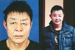 14 อีกครั้ง! หนุ่มจีนผ่าตัดแก้โรคหน้าเหี่ยว