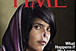 ไทม์ขึ้นปกช็อกโลก หญิงอัฟกันถูกสามีตัดจมูก