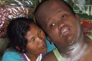 สุดยอดแม่! กัดฟันเลี้ยงลูกพิการนานกว่า 16 ปี