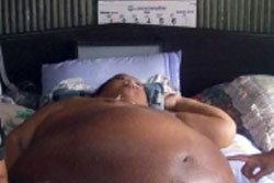 ตะลึง! โรคอ้วนประหลาด คนป่วยท้องบวมโต