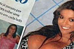 หญิงเต้ายักษ์ที่สุดในโลกผ่านมเทียมออก หลังติดเชื้อหนัก