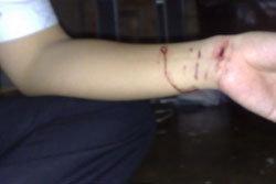 รวบ! หนุ่มสิงคโปร์ ซุกยาอี คลั่งโดนจับกรีดข้อมือโชว์