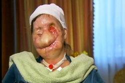 ชาร์ลา แนช หญิงหน้าเละ! ผ่าตัดหน้าใหม่สำเร็จ