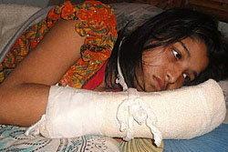 สามีบังคลาเทศโหด หั่น 5 นิ้วมือขวาภรรยาเกลี้ยง