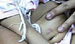 พ่อวัยโจ๋โหด บุหรี่จี้ลูก 9 เดือน แผลเต็มตัว