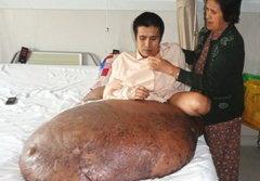 ผ่าตัดเนื้องอกยักษ์หนุ่มเวียดนามได้สำเร็จ!