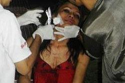 กระเทยช่วยหนุ่มอินเดียรอดมือโจร จนตัวเองถูกแทง