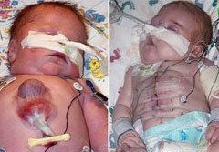 เด็กหัวใจอยู่นอกร่างกาย รอดชีวิตรายแรกของโลก