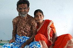 รักแท้! เปิดตัวคู่รักอินเดียฝ่ายชายเป็นท้าวแสนปม