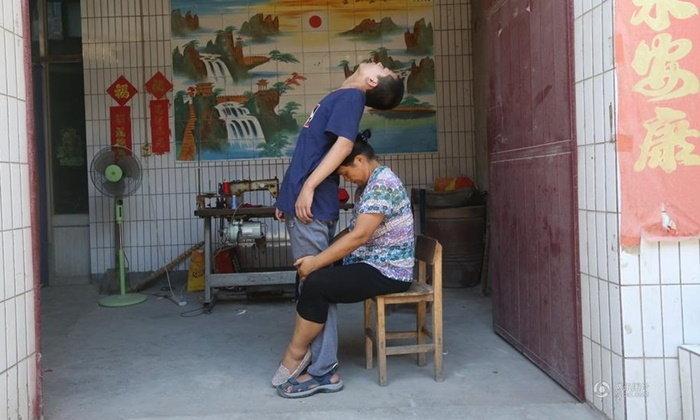 แม่ผู้แข็งแกร่ง บำบัดดัดตนให้ลูกชาย จากที่พิการกลับมาเดินได้