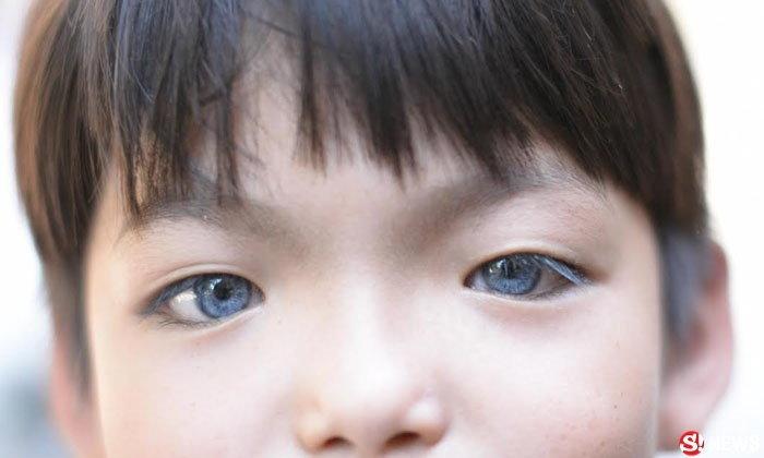 เด็กชาย 6 ขวบ มีตาสีฟ้าใส แต่หูพิการ วอนคนใจบุญช่วย