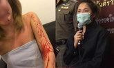 ตำรวจฟันแจ้งเท็จ สาวกรีดแขนตัวเองเลือดอาบ กุโดนแท็กซี่จี้