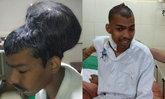 แพทย์อินเดียประสบความสำเร็จ ผ่าก้อนเนื้อสมองใหญ่ที่สุดในโลกได้