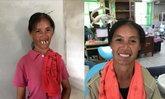 ยิ้มไม่หุบ สาวใบ้ขอทำบัตรประชาชนใหม่ หลังทำฟันพลิกชีวิต